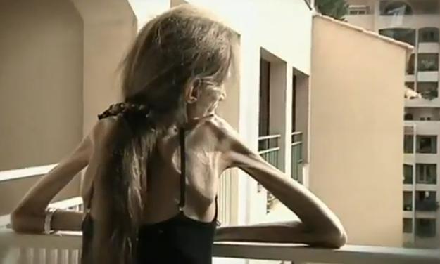 Valeria Levitina, la mujer más anoréxica del mundo