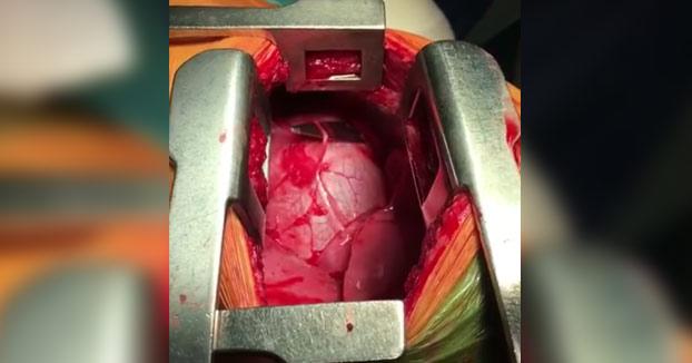 La increíble extracción de un cuchillo a corazón abierto (Vídeo)