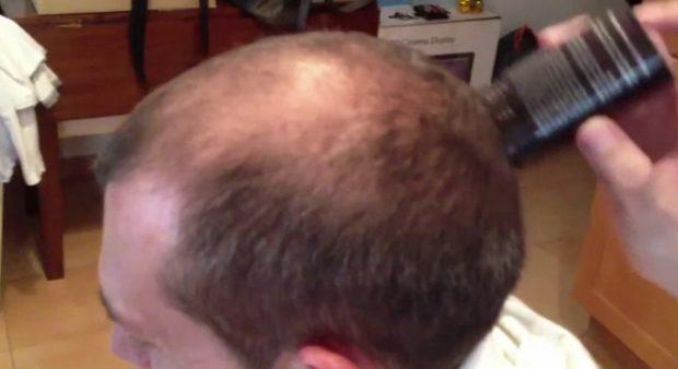 Caboki, ¿la solución definitiva a la pérdida de cabello?