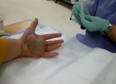 Acude al médico para quitarse una ampolla gigante que le cubre toda la palma de la mano