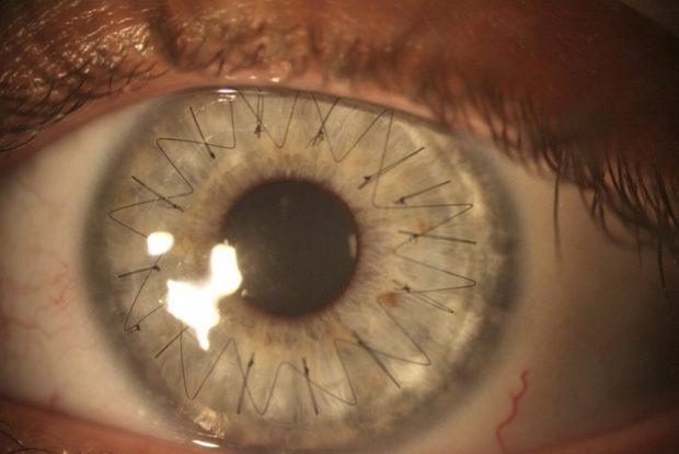 Fotografías de ojos después de un trasplante de córneas