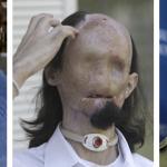 13 impresionantes transplantes de cara con su historia