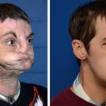 El transplante de cara más completo del mundo, 7 meses después