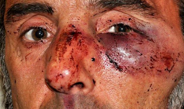 #14N: Escalofriante vídeo de la agresión policial a Carlos Gorairis, activista de PAH