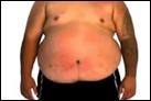 Solo de batería con la barriga de un hombre obeso