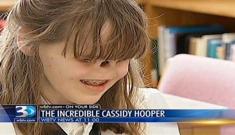 Cassidy Hooper, la adolescente que no tiene ojos ni nariz