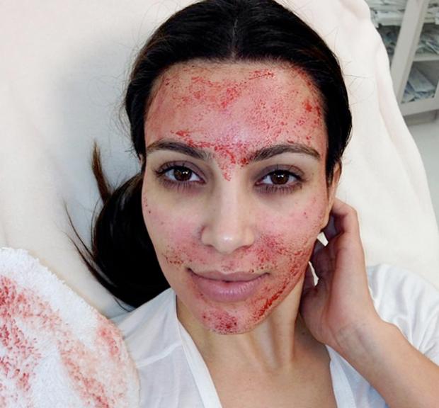 Kim Kardashian se hace un 'facial de sangre'