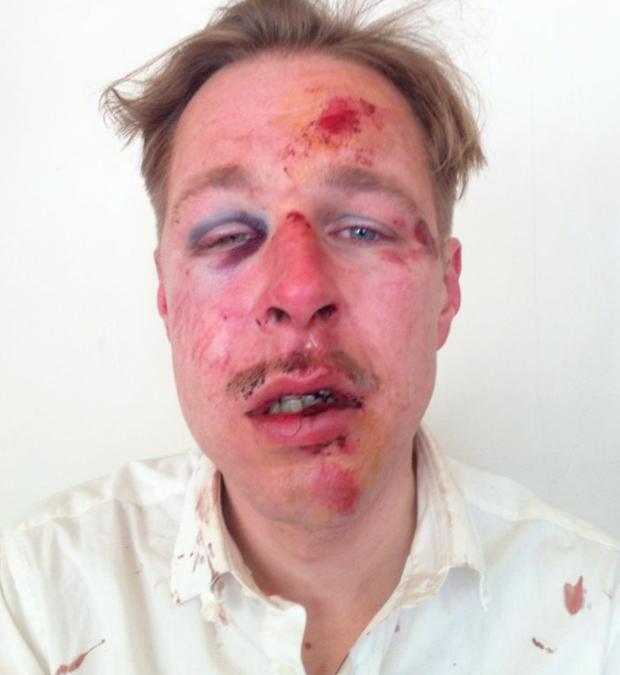 Brutal paliza homófoba en París