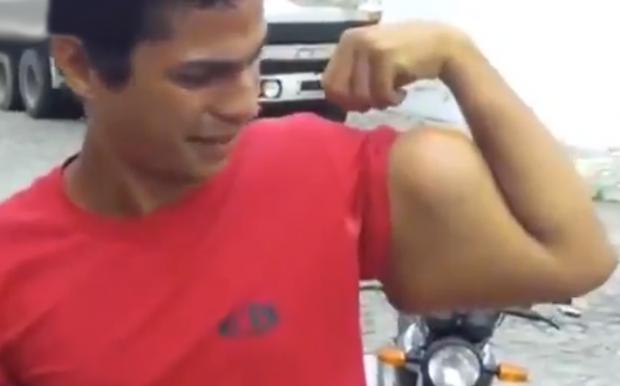 Se implanta bíceps para ligar más