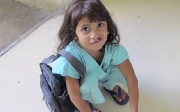 Una niña con labio leporino se ve por primera vez después de la cirugía