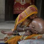 Roona Begum, una niña india con la cabeza hinchada debido a la hidrocefalia