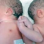 Daniel y María, los mellizos que se dieron la mano nada más nacer