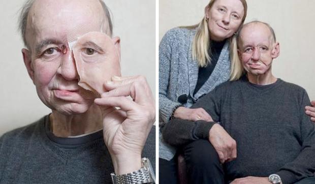Una impresora 3D le devuelve a un hombre su rostro y calidad de vida