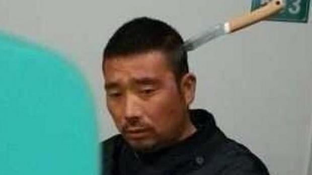 Un chino espera paciente su turno en un hospital con un cuchillo en la cabeza
