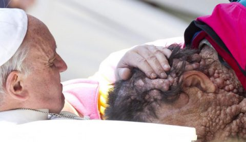 Conmovedor abrazo del Papa Francisco a un hombre enfermo de neurofibromatosis