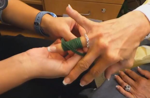Técnica simple y muy efectiva para quitar un anillo atascado