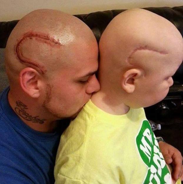 padre-tatua-cabeza-cicatriz-hijo-cancer-2