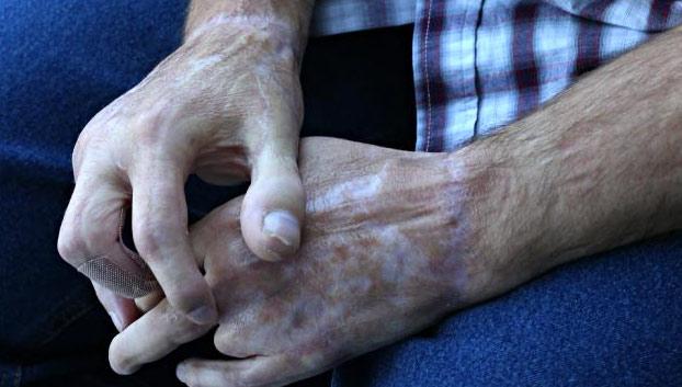 hombre-pierde-dedo-pulgar-reemplazan-dedo-pie-2