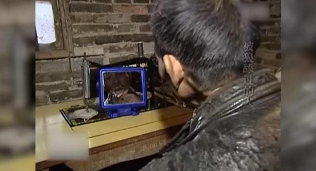 Así es cómo le quedó la cara a este hombre después de la mordedura de un lobo