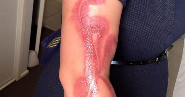 Una mujer sufre graves quemaduras al quedarse dormida sobre su iPhone 7