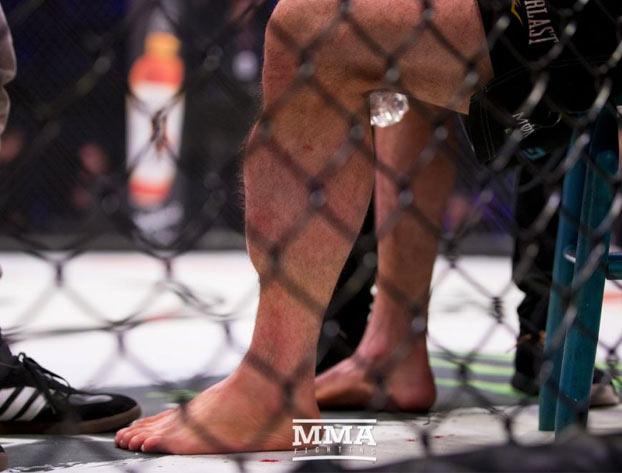 Así quedó la pierna de Rory Macdonald tras ganar el título de Bellator MMA