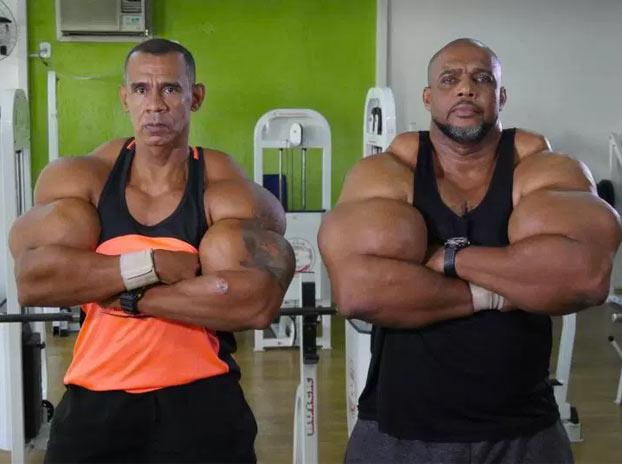 Estos dos hermanos querían ser como Schwarzenegger y ahora están en riesgo de muerte por inyectarse synthol sin control