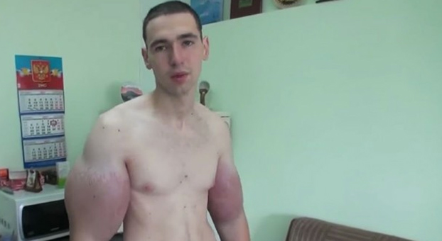 Kirill Tereshin, el 'popeye ruso', dice que ya no aguanta el dolor
