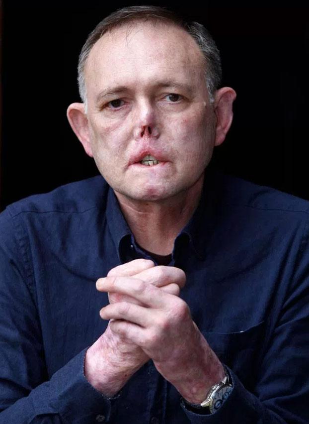 Un hombre pierde las piernas y parte de la nariz por un arañazo y un lametón de su perro