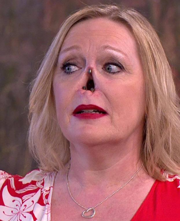 Pierde su nariz debido a una enfermedad autoinmune y ahora hace vida normal con una prótesis que se sujeta con imanes