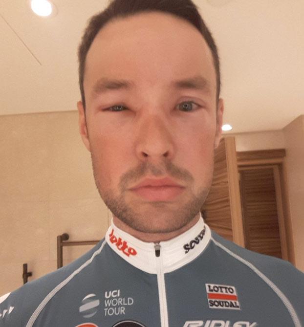 Una avispa le desfigura la cara al ciclista Sander Armée en el Giro de Italia