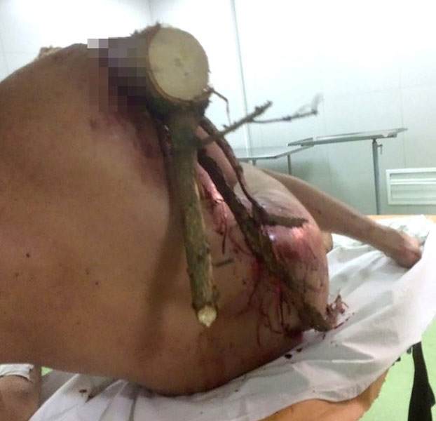 Un parapentista sufre un accidente y un tronco le atraviesa su cuerpo. Cuando llegó al hospital dijo: ''¡Soy Groot!''