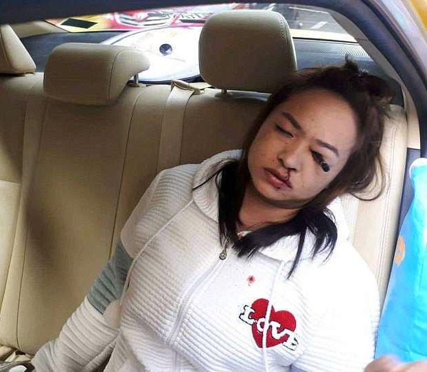 Se clava un lápiz delineador de ojos en un ojo mientras se maquillaba en un taxi