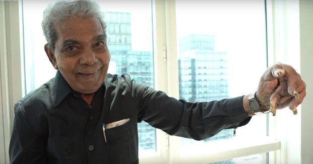 El hombre con las uñas más largas del mundo decide cortárselas después de 66 años. Este es el momento en el que se las cortan