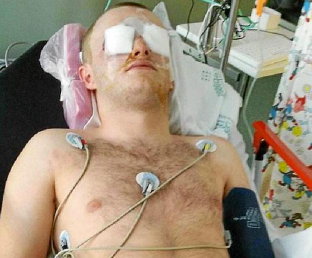 Un turista acaba con los ojos destrozados durante una fiesta en Magaluf