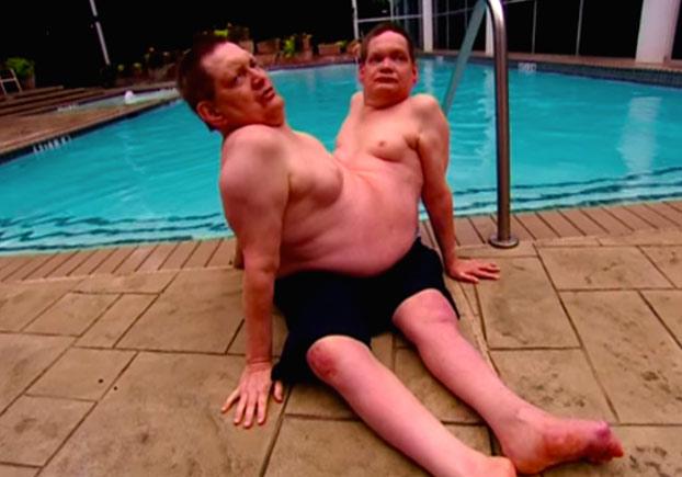 Ronnie y Donnie, los siameses unidos por la cintura más longevos del mundo