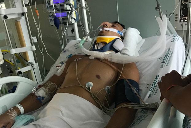 La novia de un turista ebrio que se fracturó el cuello tras tirarse de cabeza a una piscina en Magaluf pide dinero para trasladarlo a su país