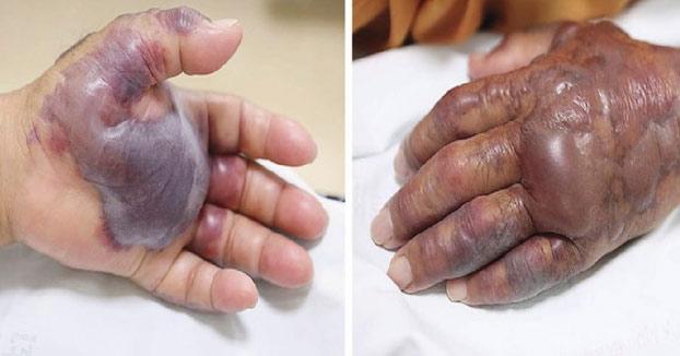 Amputan el brazo a un hombre por una infección producida tras comer sushi