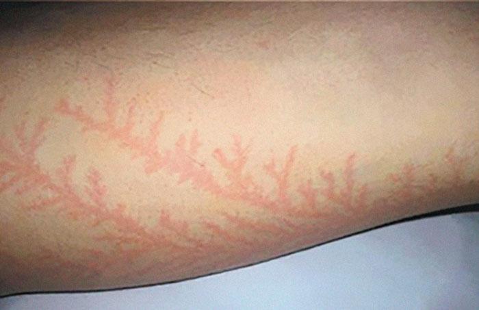19 personas que sobrevivieron tras caerles un rayo muestran lo que causa en la piel