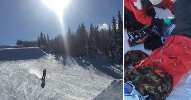 Se rompe el fémur haciendo un salto con esquís