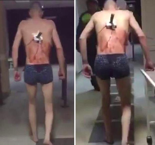 Sale del hospital con un cuchillo clavado en la espalda para fumar un cigarro, en calzoncillos y con -10°C en el exterior