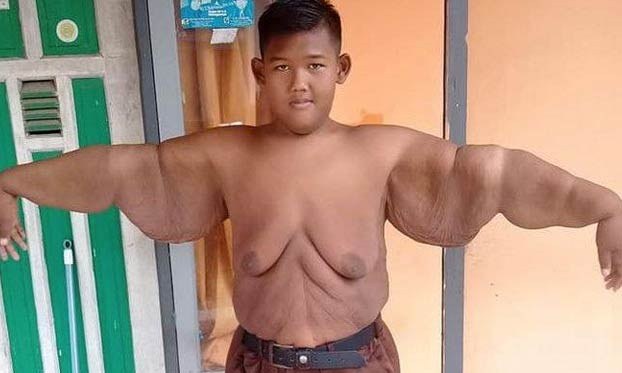 El cambio radical de Arya Permana, el niño más gordo del mundo. Ha perdido 100 kilos