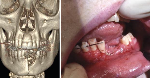 Un cigarrillo electrónico le parte la mandíbula y le deja sin dientes después de explotarle en la boca