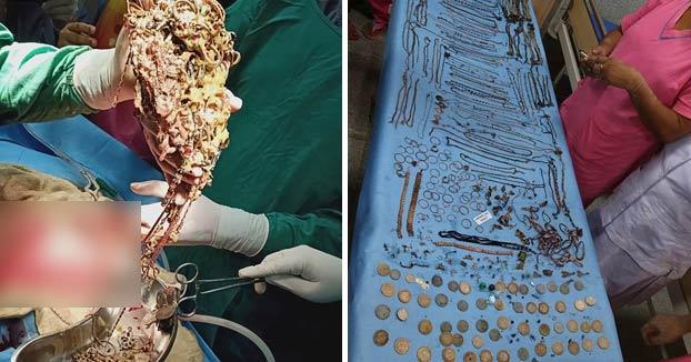 Extraen quirúrgicamente un montón de monedas y joyas del estómago de una joven de 26 años