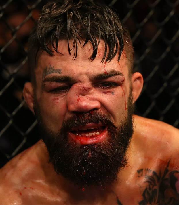 El luchador de la UFC Mike Perry termina con la nariz destrozada después de un rodillazo