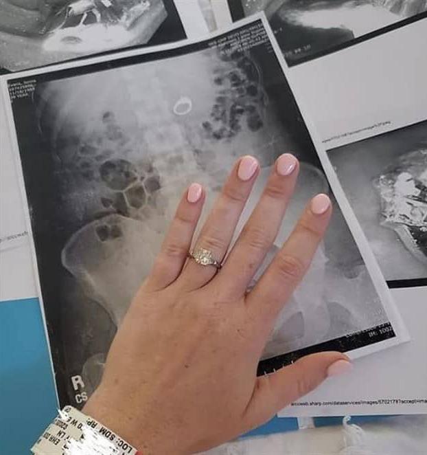 Una mujer se traga su anillo de compromiso mientras dormía