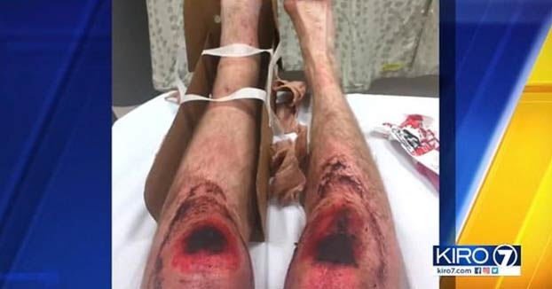 Un corredor se fractura el tobillo y se arrastra 10 horas para conseguir sobrevivir