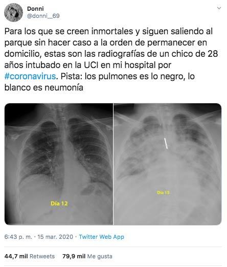 Para los que se creen inmortales y siguen saliendo, estas son las radiografías de un chico de 28 años intubado en la UCI