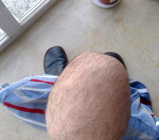Un troll engaña al foro más importante de alopecia en España con fotos de sus rodillas