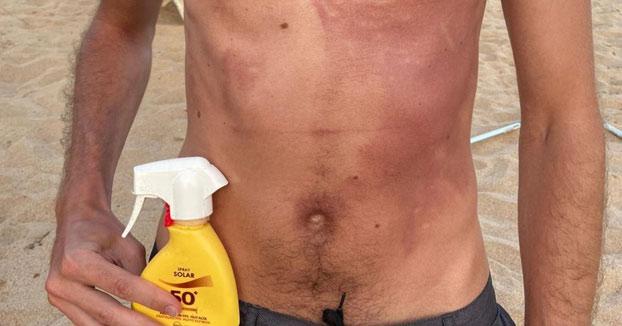 Quemaduras en la piel y prohibido volver a tomar el sol: esta crema solar de Mercadona está siendo investigada