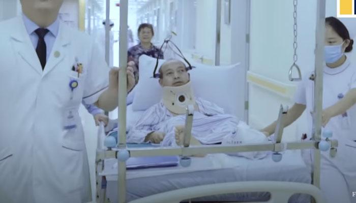 Un hombre chino apodado ''el hombre plegable'' puede volver a caminar erguido después de 28 años tras cuatro operaciones